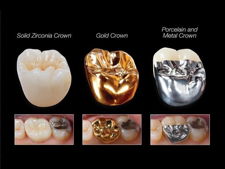 مواد مورد استفاده در روکشهای زیبایی دندان