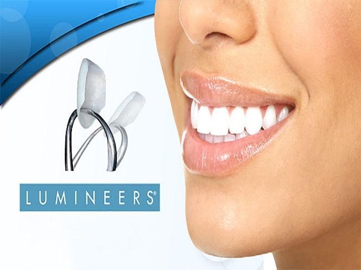 لومینیرز یکی از روکشهای زیبایی دندان میباشد