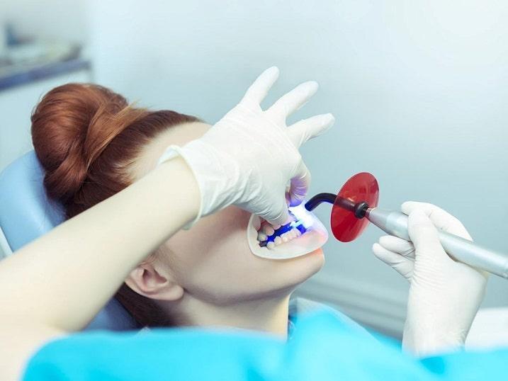 بلیچینگ یکی از روشهای درمانی مورداستفاده در دندانپزشکی زیبایی است