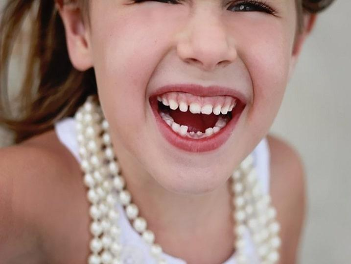 تأثیر ژنتیک بر دندان